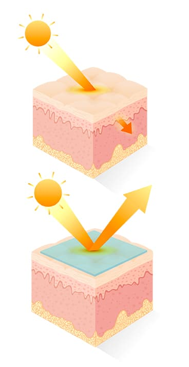 Rayons UV